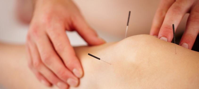 lierre-massage-supplies-acupuncture-needles-lierremedical-com