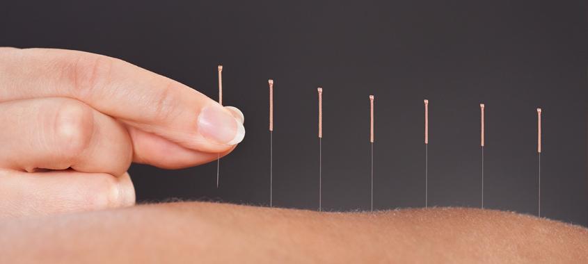 lierremedical-com-lierre-acupuncture-needles-massage-table-massage-supplies