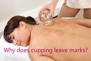 lierre-blog-why-does-cupping-leave-marks