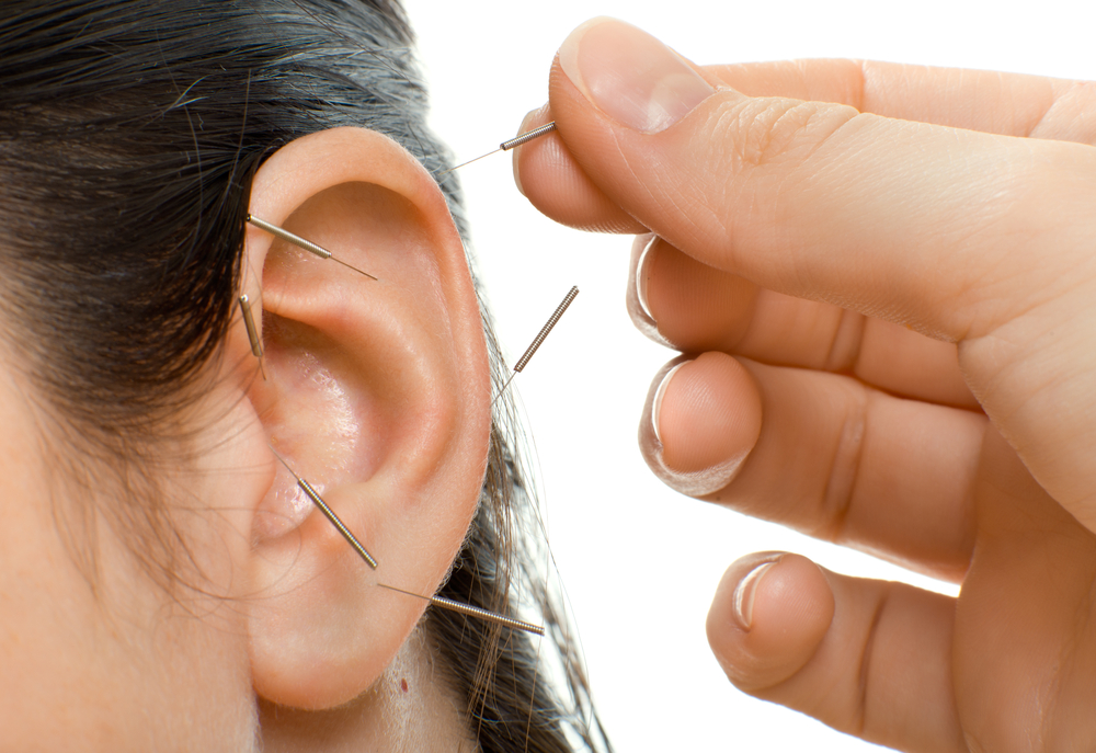 Ear-Acupuncture